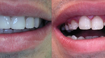 zirconium before and after